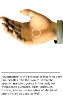 Acupuncture Procedure