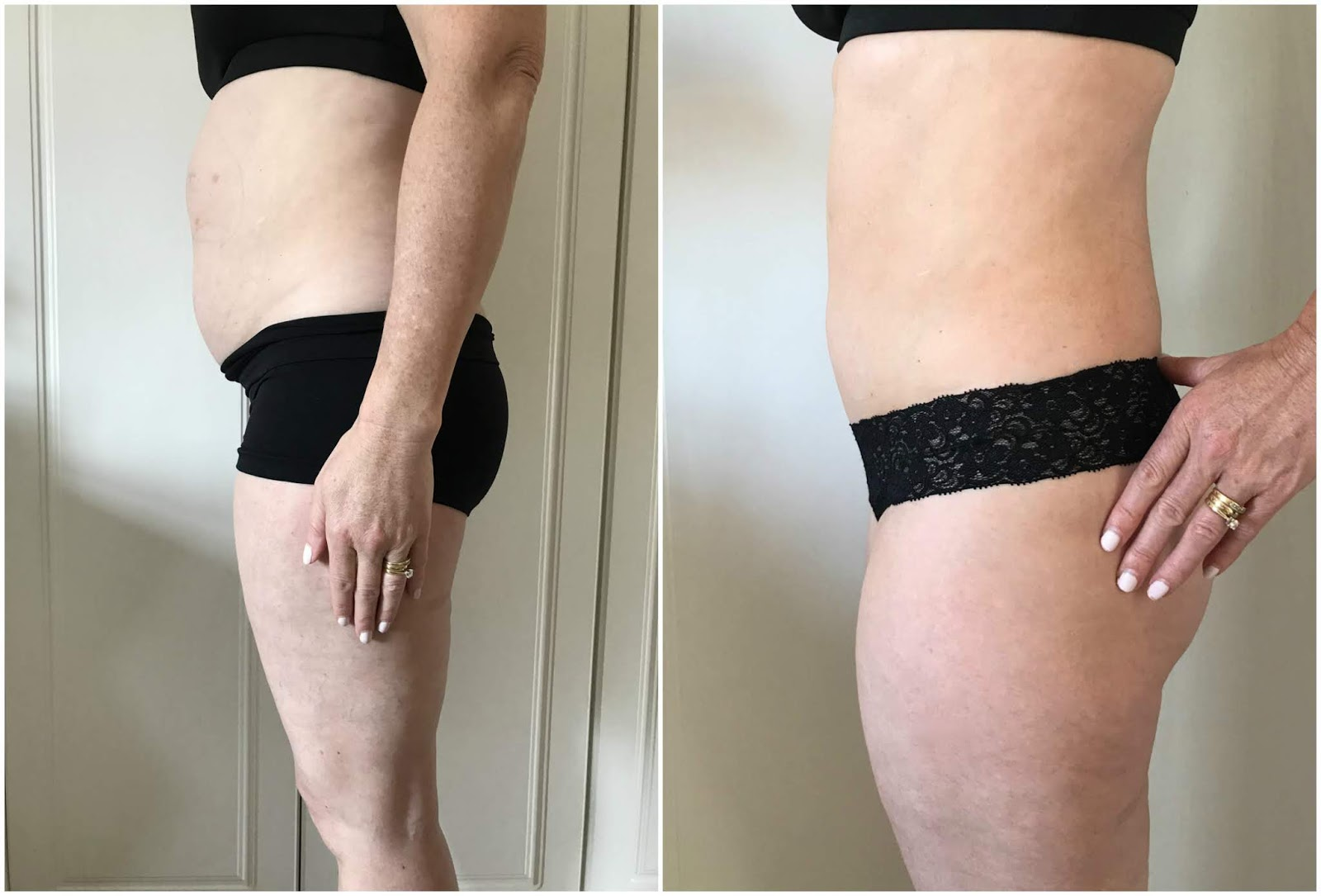 Coolsculpting \ first photo and last photo after treatment