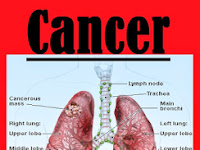 Stage 1 Lung Cancer Survival Rate