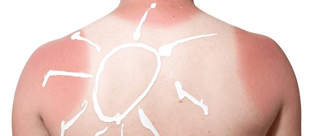 remedios para curar las quemaduras del sol