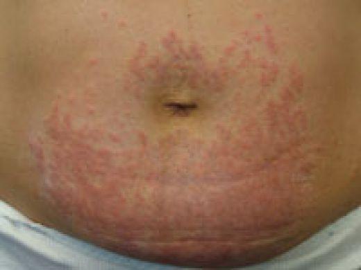Skin Rash Pregnant 3