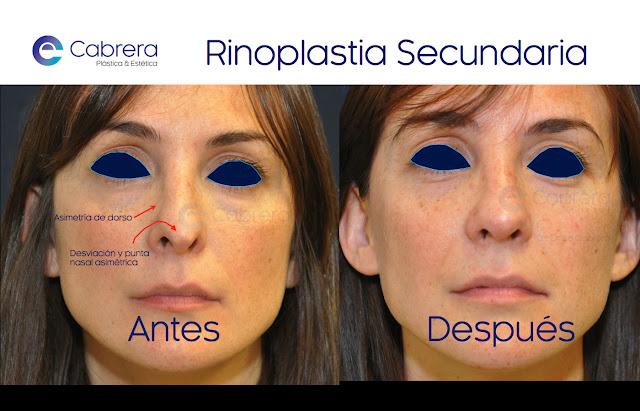 Caso 1 rinoplastia secundaria Córdoba