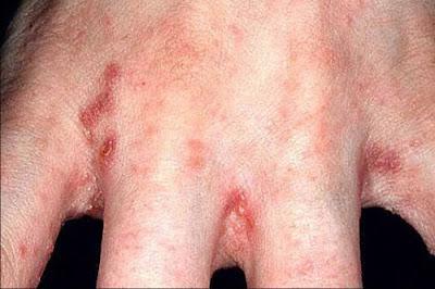 nấm tổ đỉa và bệnh ghẻ 3