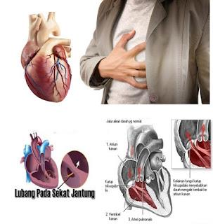 Bila Dibandingkan Dengan Operasi Untuk Mengobati Penyakit Jantung Bocor
