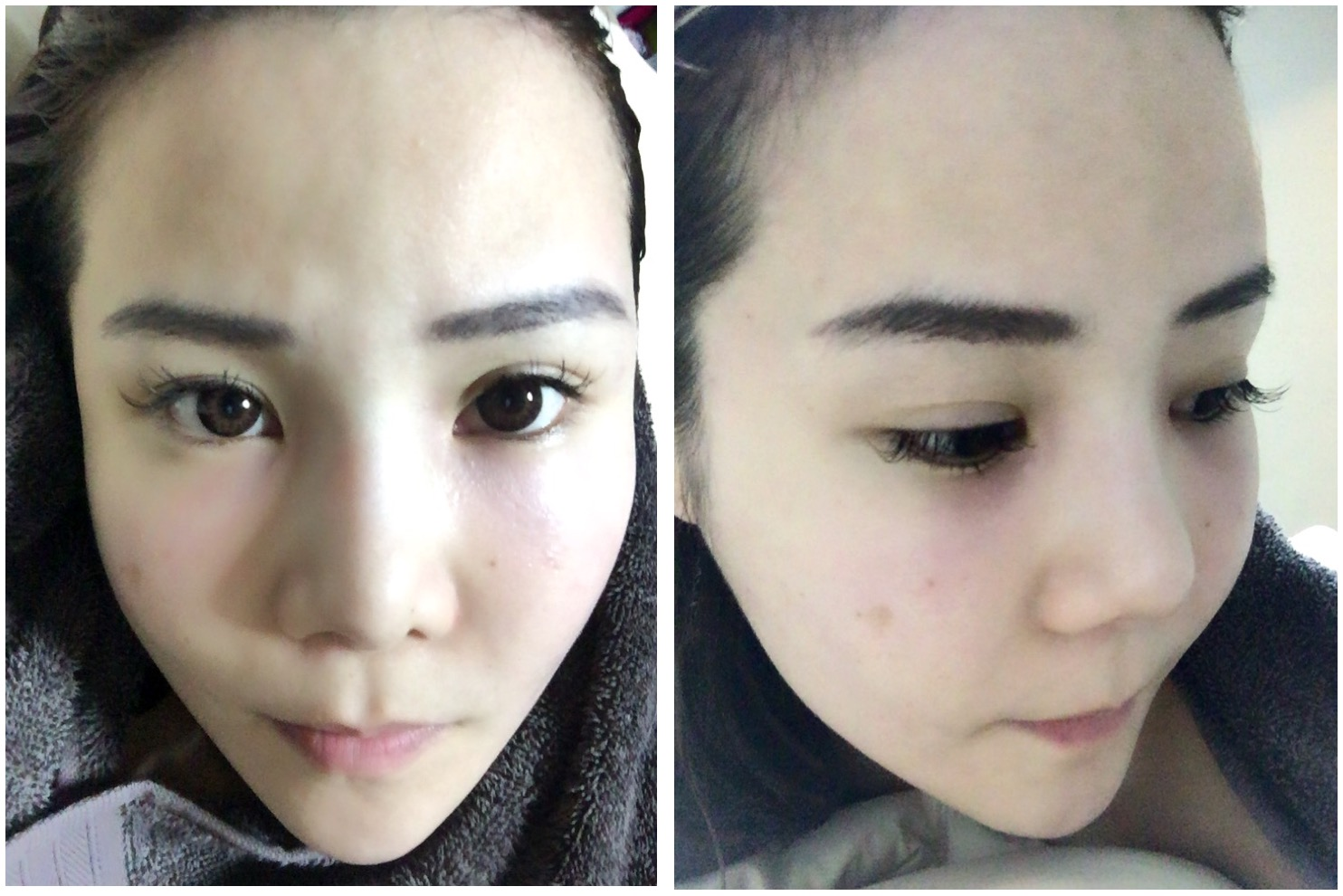 Taiwan Trip : Aesthetic treatments @ iStyle Aesthetic Clinic