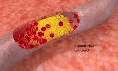 El Colesterol