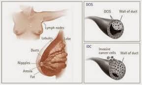 Penyebab dan gejala kanker payudara