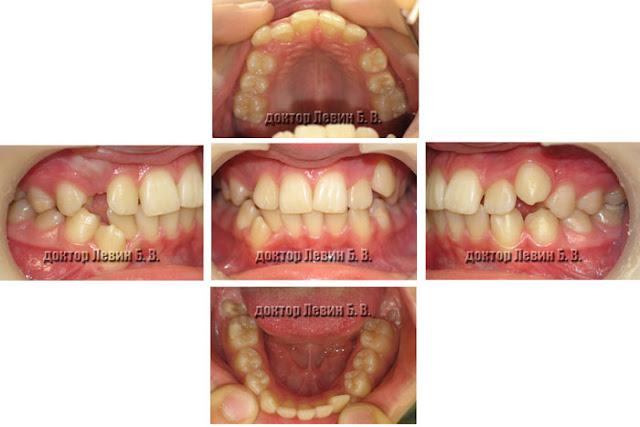 Зубы до лечения брекетами