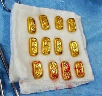 Gokil Dokter Di India Temukan 12 Emas Batangan Di Perut Pasiennya