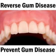 reversing gum disease, gum, Gingivitis, Gingivitis Treatment, Gingivitis Treatment at Home, Behaviors,