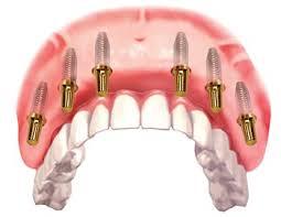 Các loại răng giả nguyên hàm tháo lắp
