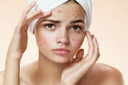 Home Care Treatments for Acne