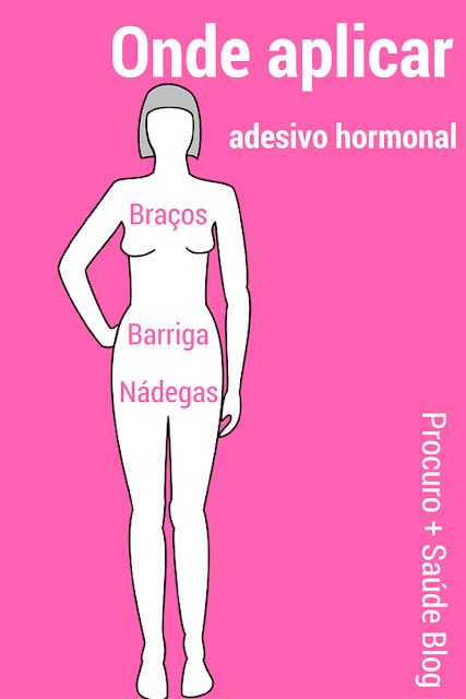 Onde aplicar o adesivo hormonal lisvy® ou evra®?