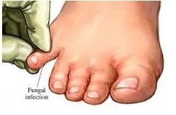 obat untuk mengatasi gatal gatal pada kaki menahun