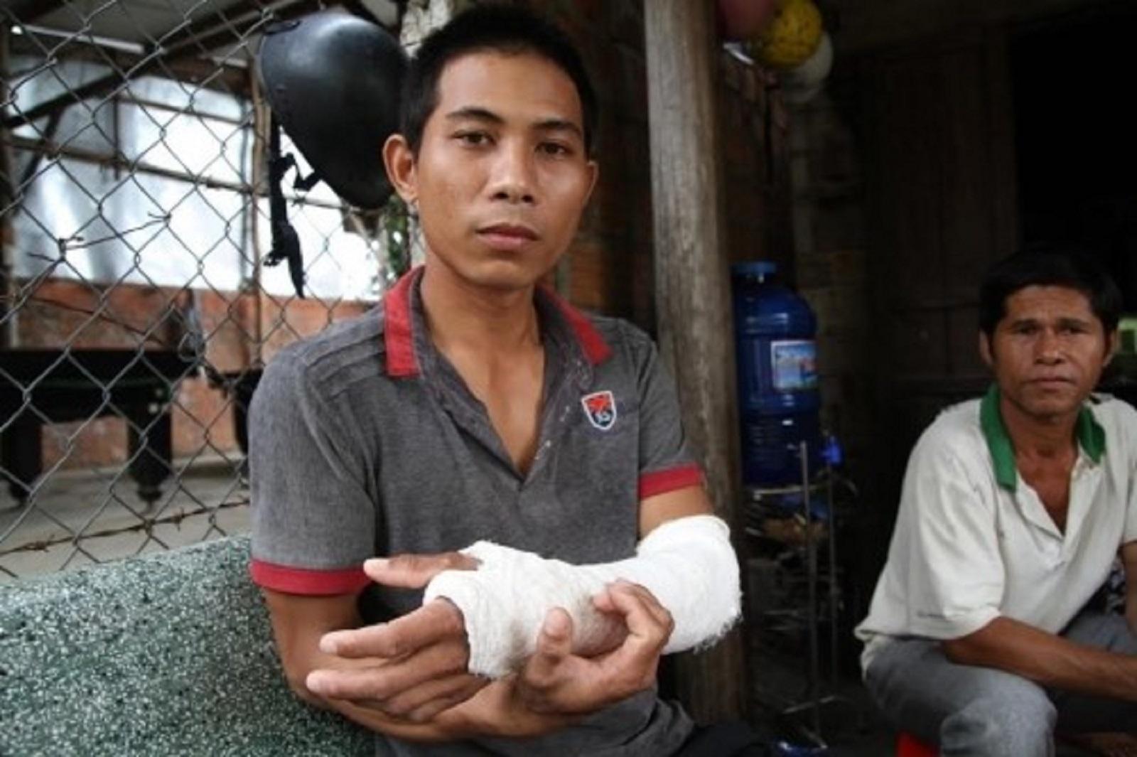 Gia Lai: Đề xuất cách chức trưởng công an xã đánh người