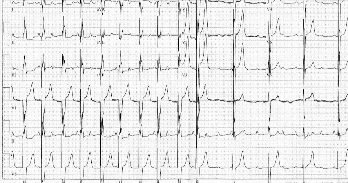 Pedi cardiology: Quiz: EKG, Postop. Repair of AVSD