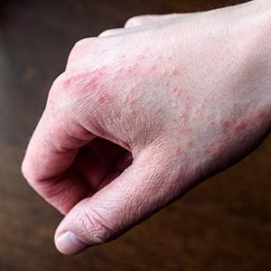 dermatite della mano