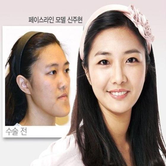 Antes e depois de cirurgia plásticas coreana