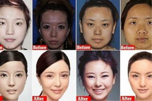 wanita-china-ubah-wajah