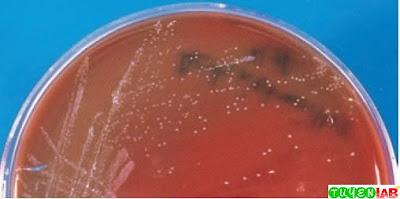 Aggregatibacter actinomycetemcomitans on sheep blood agar.