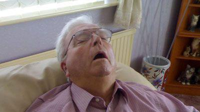 Tidur mendengkur, ngorok, snoring, sleep apnea