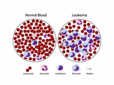 penyebab kanker darah, gejala kanker darah, cara mengobati kanker darah