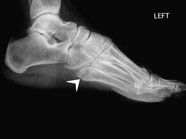 Bump Or Lump On Side Of Foot