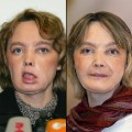 First face transplant patient Isabelle Dinoire dies in France