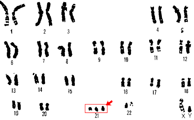 Down syndrome in humans is due to? ~ Biology Exams 4 U