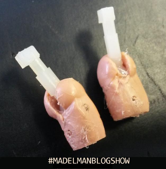 Cirugía plastica Madelman