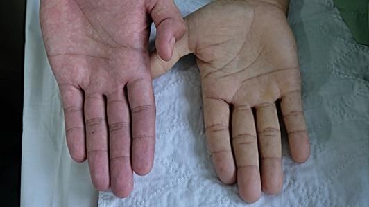 7 علامات تدل على الإصابة بفقر الدم قد لا تكون على علم بها