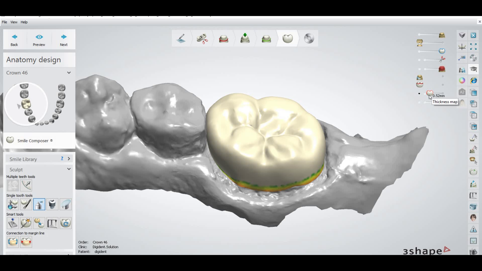 how you can check minimum thickness in 3shape dental