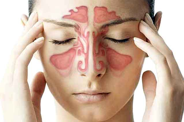 Home Remedies Sinus Headache