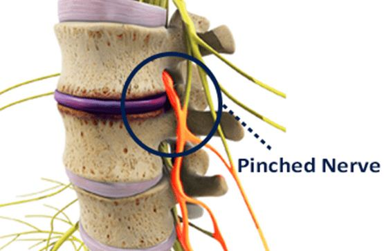 What To Do For A Pinched Nerve