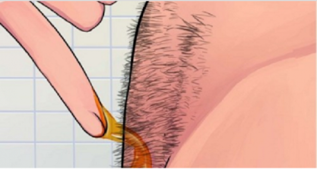 مذهل.. بهذه الطريقة يمكنكم إزالة الشعر بشكل دائم وطبيعي! تعرفوا على هذه الطريقة السهلة والبسيطة...