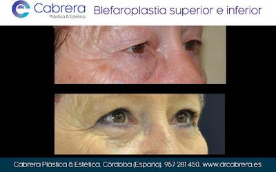 Blefaroplastia o cirugía de párpados