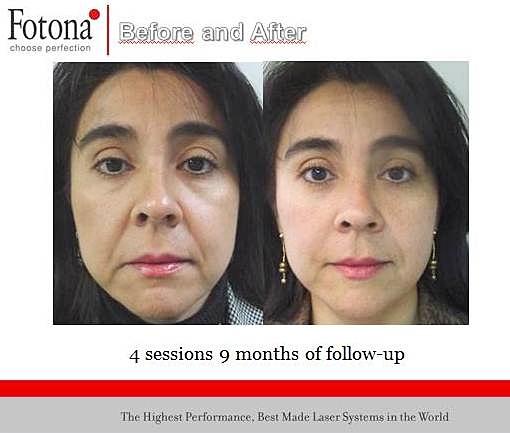 IntraOral Laser , Fotona 4D Laser, Fotona NightLase, Fotona 4D Facelift Laser, Laser Treat Skin Laxity, Laser Treat Snoring Problems