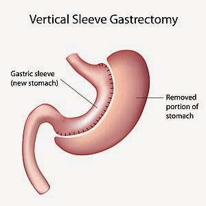 Sleeve Gastrectomy in India