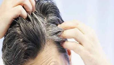 Cara Mencegah dan Menghilangkan Rambut Beruban