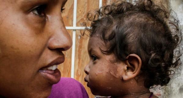 ¡PLAGAS DE LA POBREZA! 20% de los pobladores de Anzoátegui tienen sarna