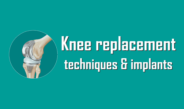 10-minute guide to Knee Replacement
