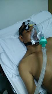 Bantuan pernafasan dari mesin ventilator