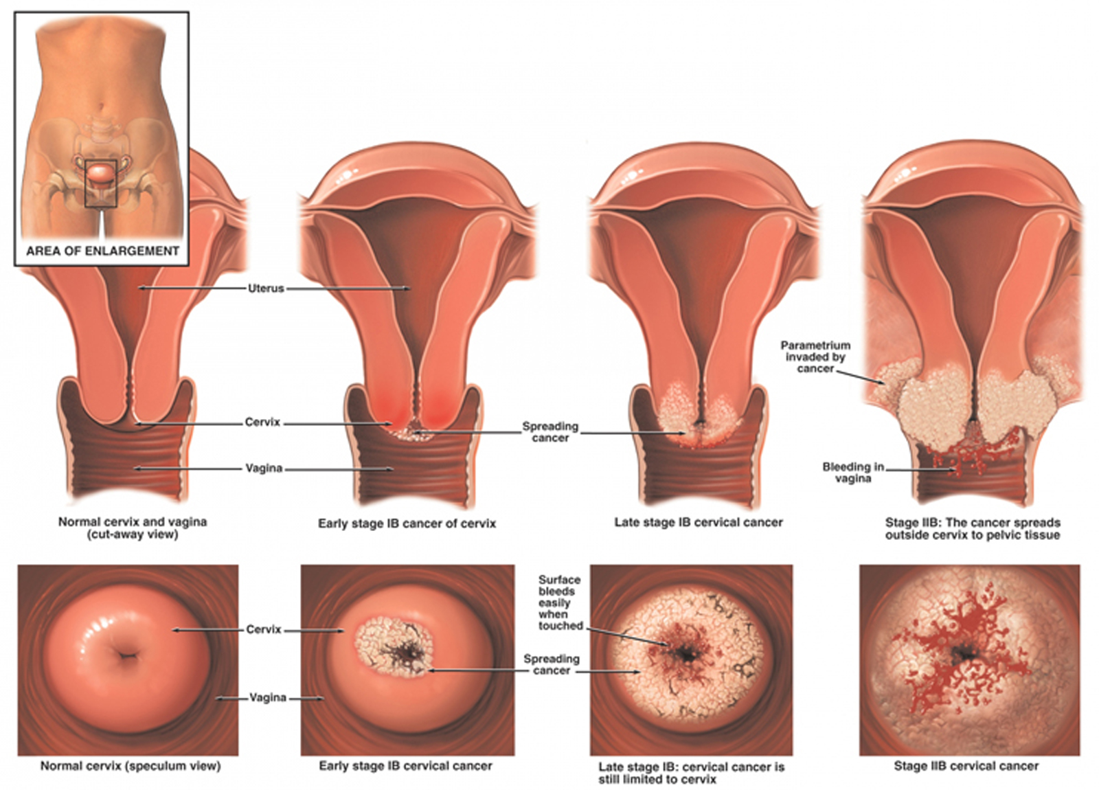 endometrioz-u-devstvennits