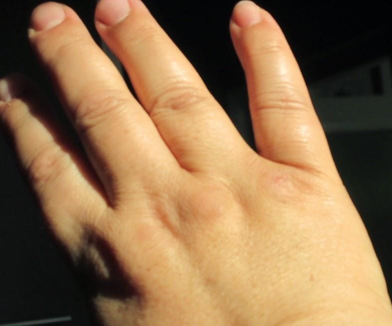 Premiul de la Miere Sabadus si remediul calusului de la maini