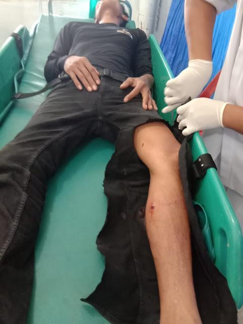 Tersangka curas di Asahan Syahrizal yang ditembak polisi saat diberada di rumah sakit.