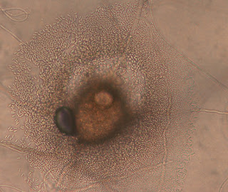 Microscope photo of a fruiting body with small round spores