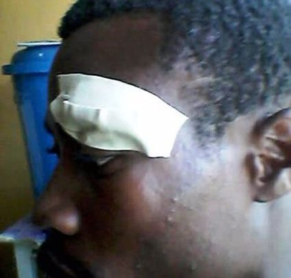 Man Beaten Up Mercilessly For Defecting From NDC To NPP