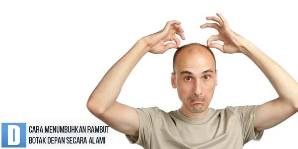 Permalink to Cara Menumbuhkan Rambut Botak Depan Secara Alami