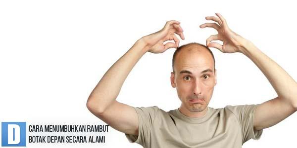cara menumbuhkan rambut, cara menumbuhkan rambut botak, obat rambut botak depan,  penumbuh rambut alami, dokter rambut