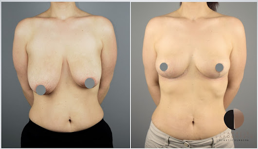 Breast lift and asymmetry correction - Ανόρθωση μαστών και διόρθωση ανισομαστίας.